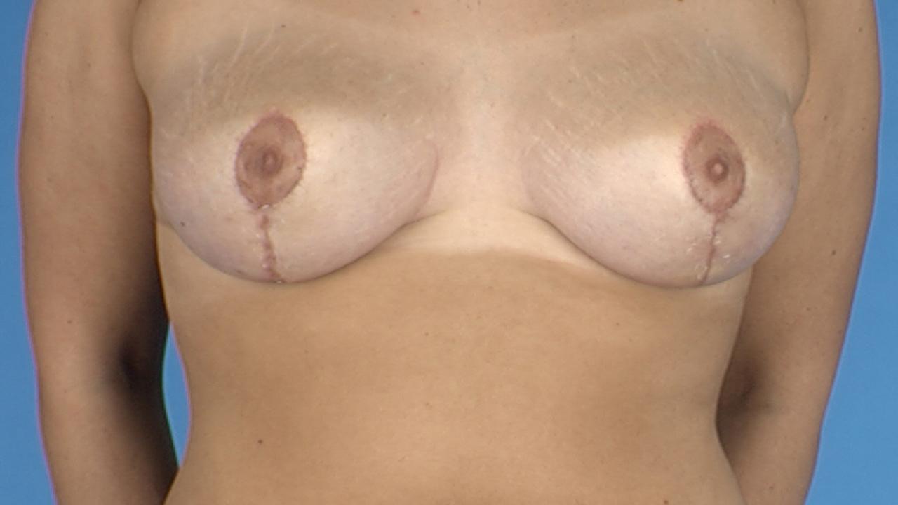 Die Erhöhungen der Brust die Milch