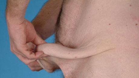© Moser Milani Medical SPA / Patient 3 vor der Straffung / Zum Vergrößern auf das Bild klicken