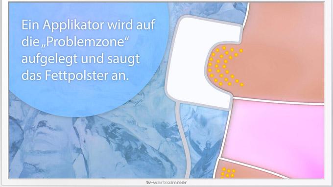 © www.tv-wartezimmer.de / TV-Wartezimmer_Kryolipolyse_2 / Zum Vergrößern auf das Bild klicken