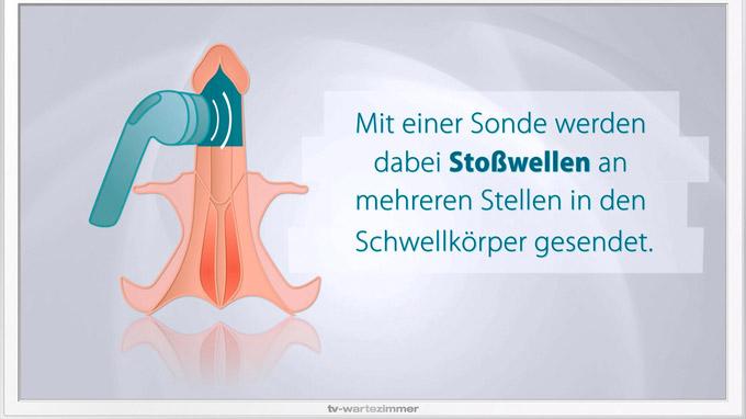 © www.tv-wartezimmer.de / TV-Wartezimmer_Stosswelle_ED_2 / Zum Vergrößern auf das Bild klicken