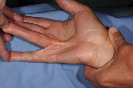 dupuytren contracture steroid injection