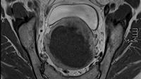 © Ass. Prof. Privat-Dozent Dr. Florian Wolf / Uterusmyom Embolisation_3_1 / Zum Vergrößern auf das Bild klicken