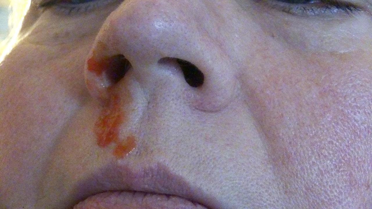 Nasenbluten Ursachen Und Erste Hilfe Maßnahmen