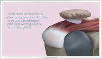 Arthroskopie Schulter 3
