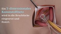 © www.tv-wartezimmer.de / Leistenbruch-OP / Zum Vergrößern auf das Bild klicken