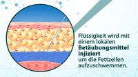 © www.tv-wartezimmer.de / Liposuktion - Fettzellen / Zum Vergrößern auf das Bild klicken