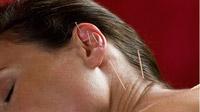 © iTCM-Klinik Illertal GmbH / Akupunktur - Heuschnupfen / Zum Vergrößern auf das Bild klicken